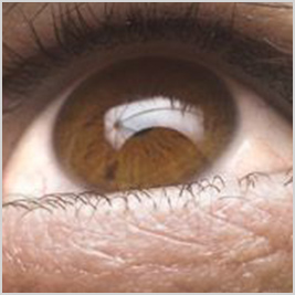 surgical corneal transplants surgical treatments