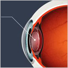 surgical intraocular lenses surgical treatments