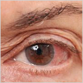 surgical pterygium surgical treatments